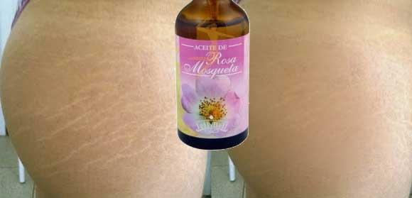 Как применять миндальное масло против растяжек во время беременности?