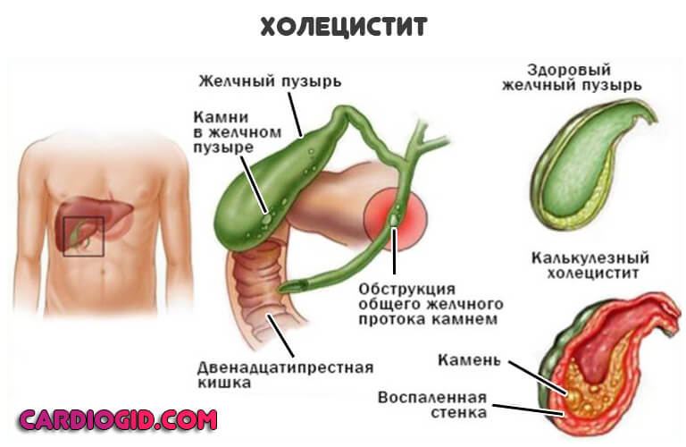 Причины холецистита желчного пузыря у детей