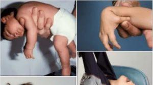 Гипотонус у грудничка: признаки и лечение пониженного тонуса мышц у ребенка