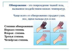 Первая помощь при обморожении - статьи о первой помощи