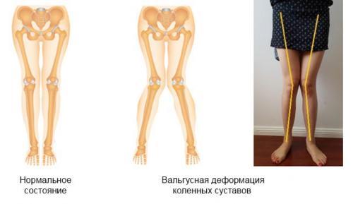 Вальгусная деформация коленных суставов: что это, причины и лечение