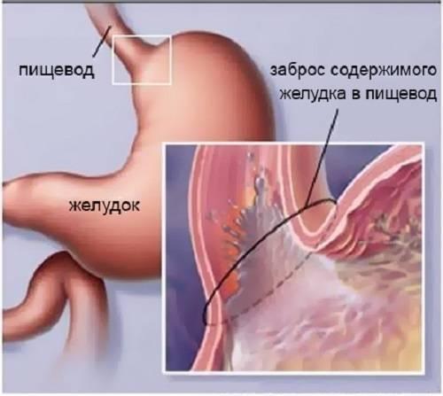 Рефлюкс эзофагит у детей