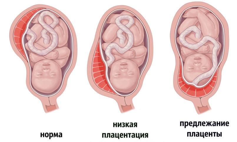 Чем опасно низкое расположение головки плода перед родами