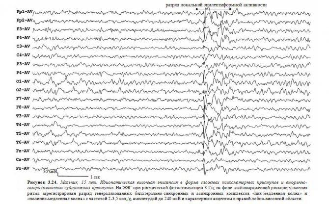 Фокальная эпилепсия: что это такое, виды и лечение у детей и взрослых