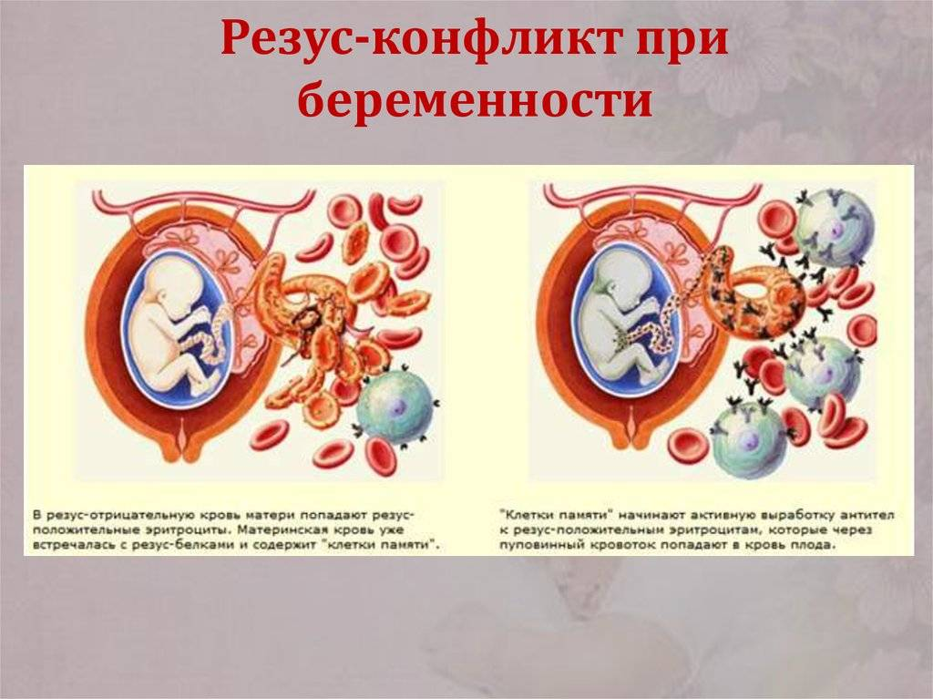 Совместимость резус-факторов и групп крови для зачатия ребенка