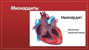 Миокардит.  причины, симптомы и признаки, диагностика и лечение болезни