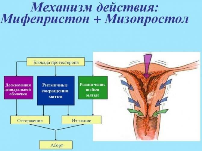 Мифепристон для будущей мамы: кому поможет родить