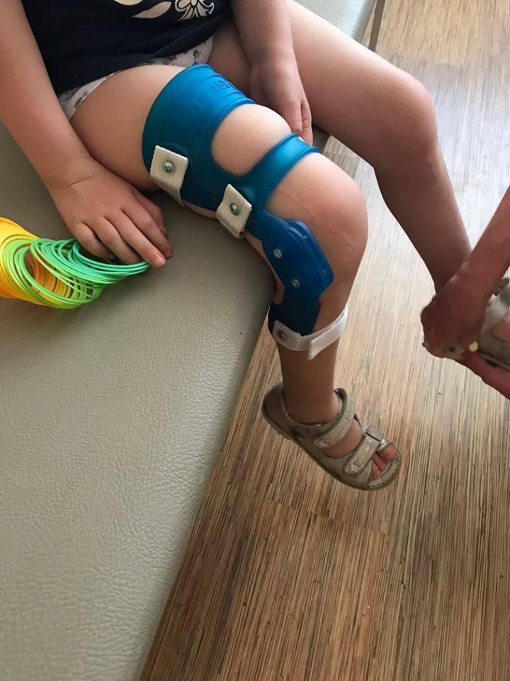 Упражнения от врача‐ортопеда при вальгусной деформации коленных суставов у детей