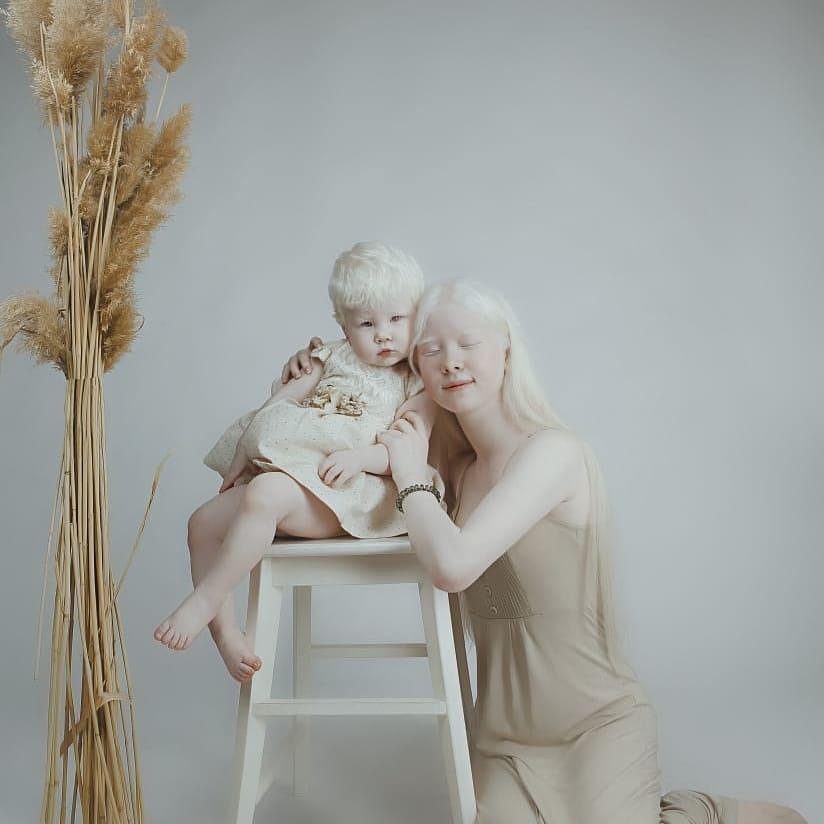 Альбинизм: особенности заболевания и причины его возникновения. «белая ворона», или особенности здоровья и развития ребенка-альбиноса альбиносы - дар небес