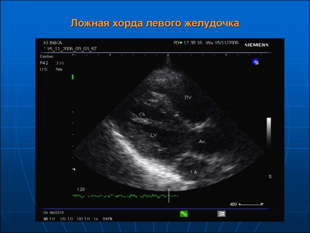 ✅ что такое хорда в сердце у ребенка - денталюкс.su