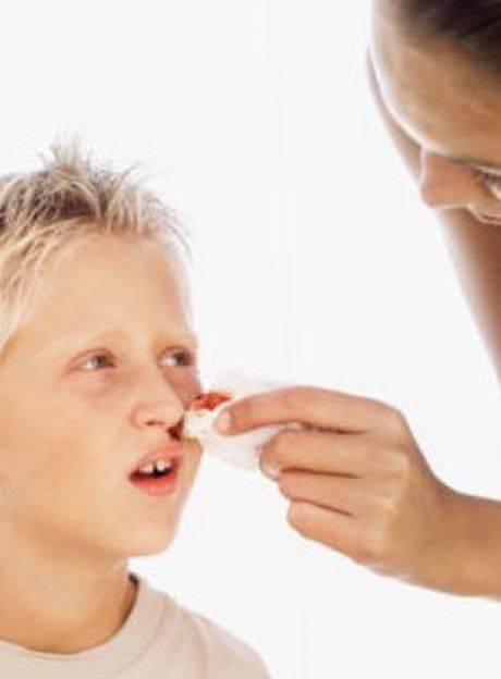 Кровь из носа у ребёнка причины как помочь ребенку ?
