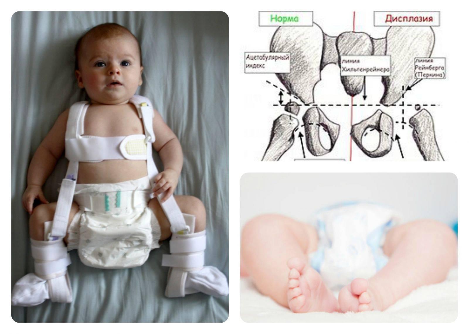 Дисплазия у новорожденного: все способы лечения