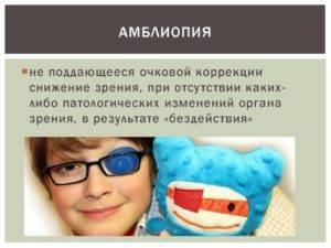 Амблиопия у детей - что такое синдром ленивого глаза, симптомы и диагностика, можно ли вылечить заболевание в домашних условиях