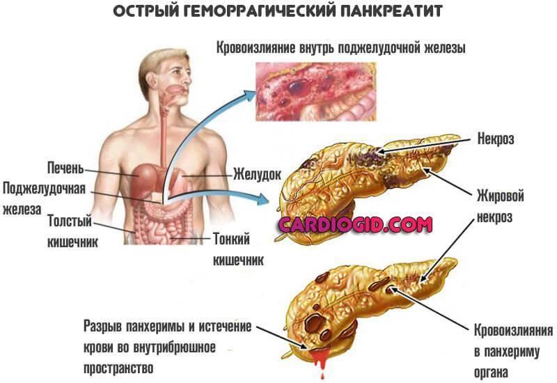 Панкреатит у детей: симптомы и лечение, признаки реактивной и острой форм, клинические рекомендации, причины появления в раннем возрасте