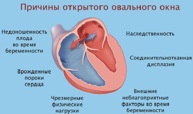 Незакрытое овальное окно в сердце у ребенка