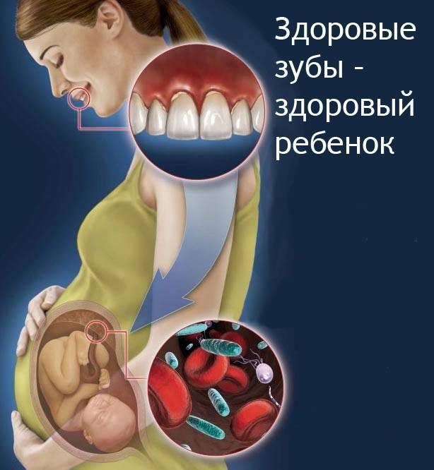 Можно ли беременным лечить зубы с анестезией, рентгеном и удалением?