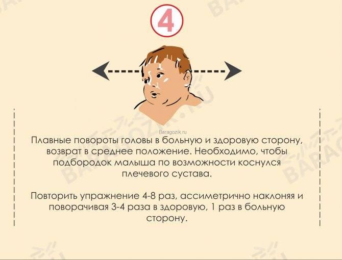 Кривошея у новорожденных (18 фото): лечение грудничка и как определить ее у ребенка, можно ли вылечить воротником, мнение доктора комаровского, отзывы