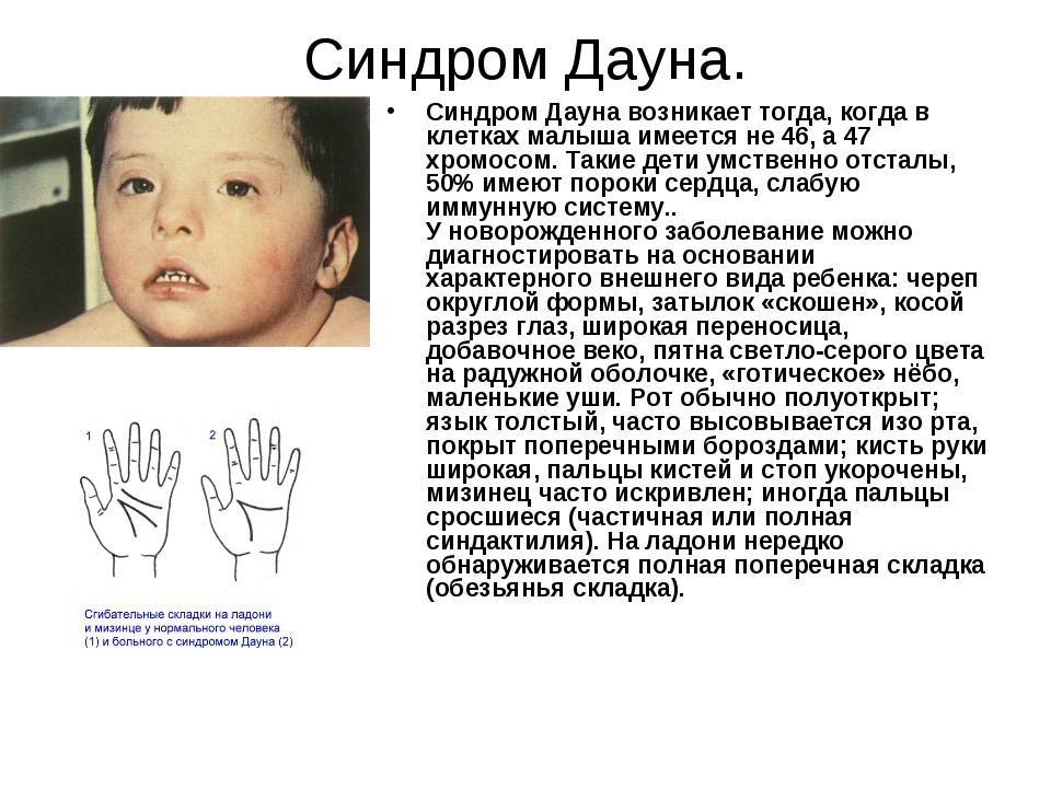 Как определяют у новорожденных синдром дауна — все о детях