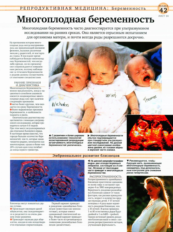 Многоплодная беременность: ведение, осложнения, роды