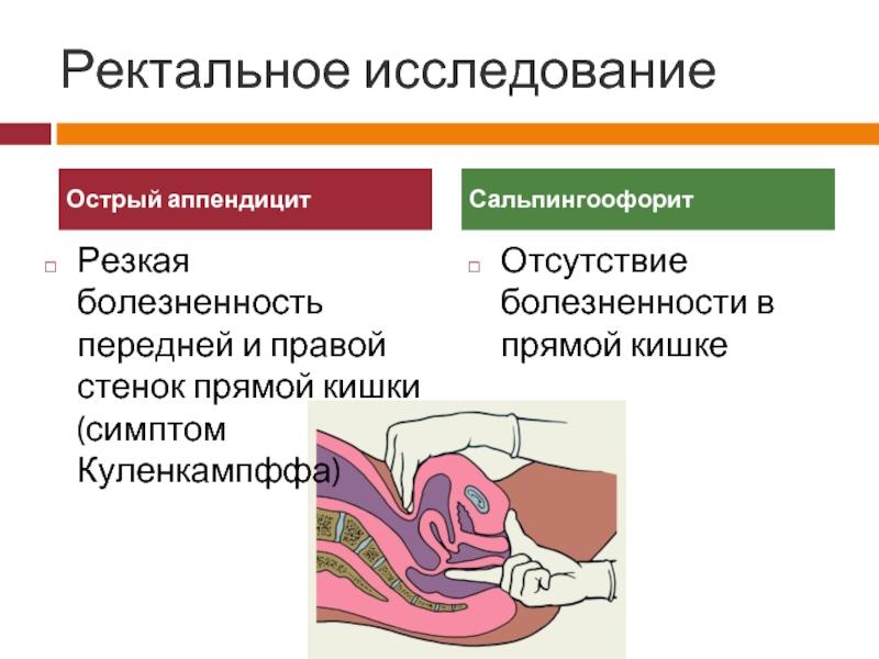 Симптомы воспаления аппендицита при беременности