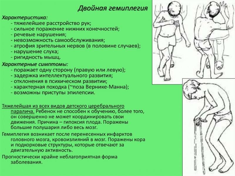 Дцп (детский церебральный паралич)   симптомы   диагностика   лечение - docdoc.ru