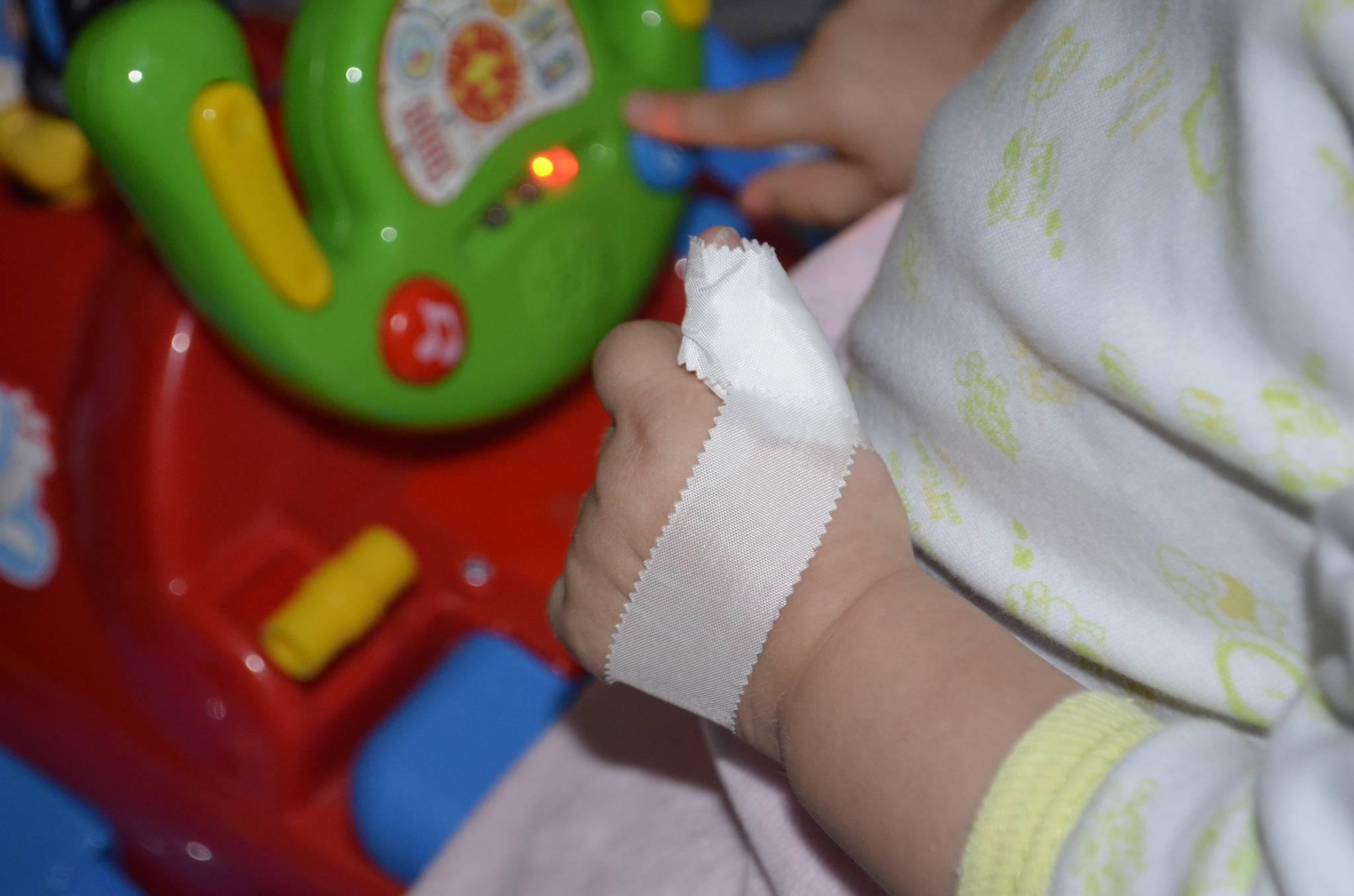Как отучить ребенка сосать палец - причины вредной привычки