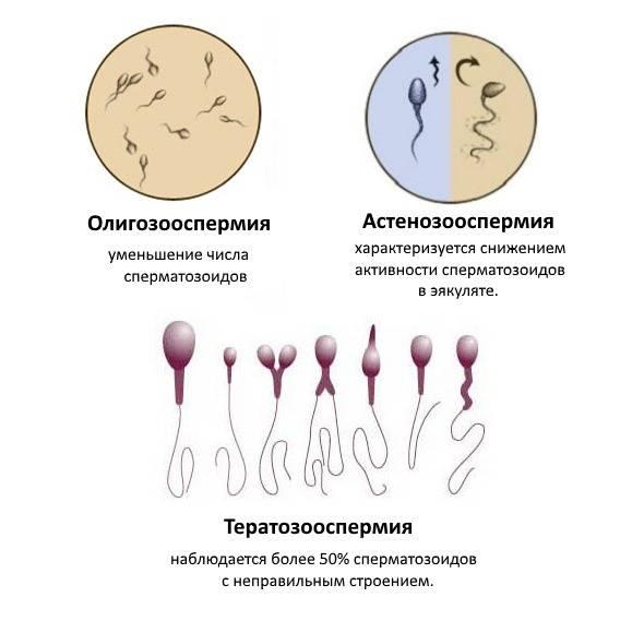 Некроспермия: симптомы, диагностика и лечение, можно ли забеременеть