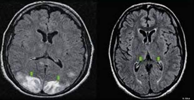 Резидуальная энцефалопатия головного мозга у детей и взрослых