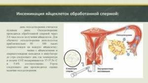 Искусственная инсеминация - как проходит процедура, вероятность зачатия и возможные риски