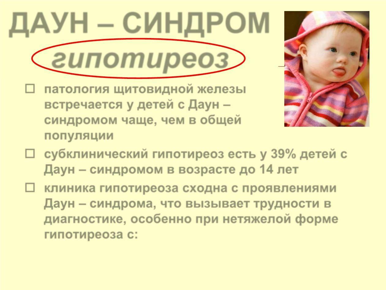Какие признаки синдрома дауна у новорожденных?