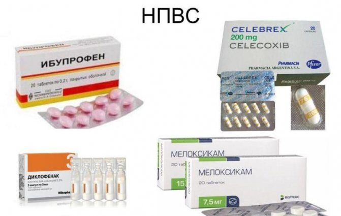 Нестероидные обезболивающие препараты список