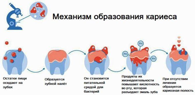 У ребенка кариес молочных зубов: почему он появился и как лечить. кариес молочных зубов