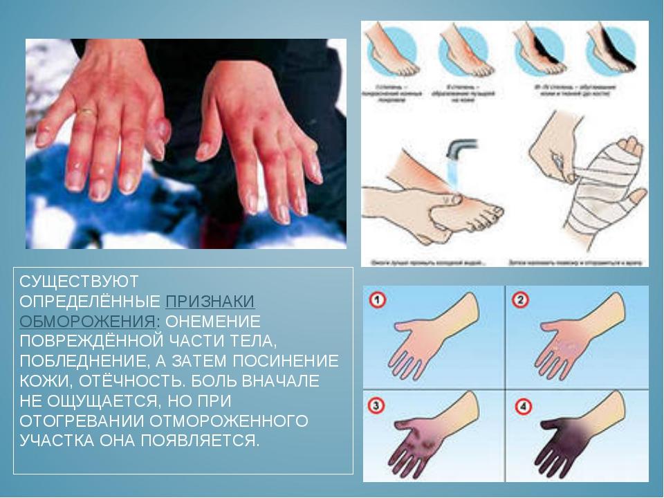 Оказание первой медицинской помощи при обморожении: признаки, степени, симптомы и лечение обморожения | азбука здоровья