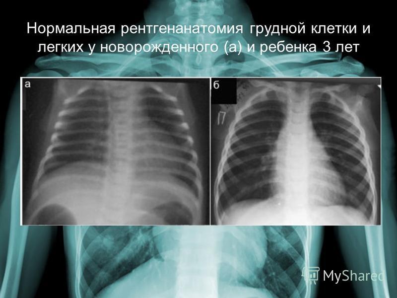 Что нужно знать, прежде чем делать рентген легких ребенку