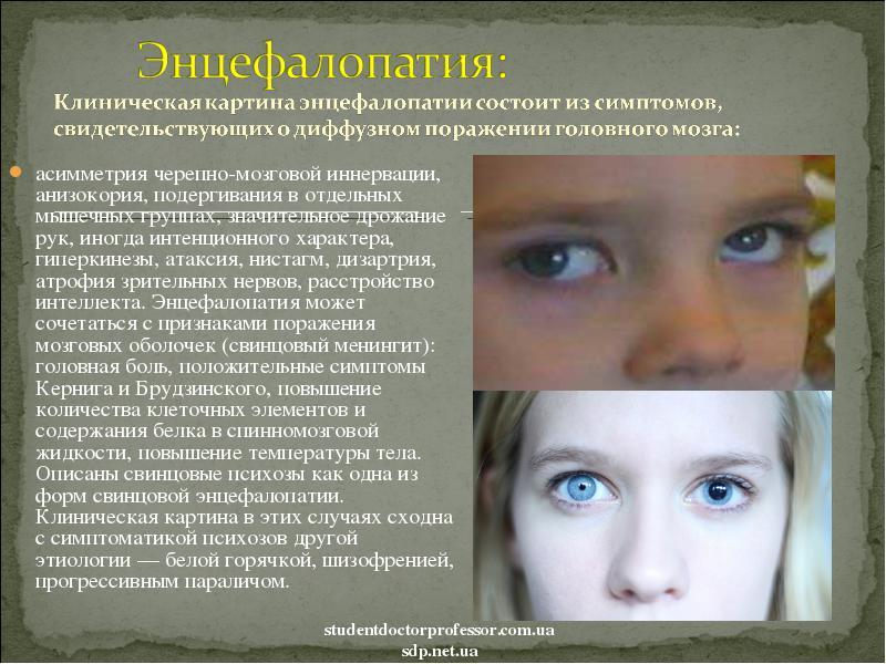Энцефалопатия у детей: причины, симптомы, лечение, прогноз