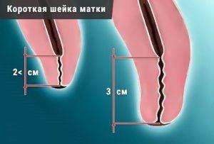 Может ли шейка матки при беременности удлиниться: какая норма