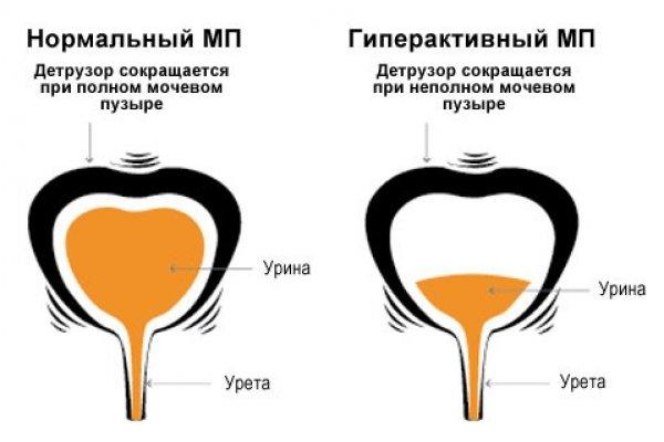 Симптомы и лечение нейрогенной дисфункции мочевого пузыря у детей