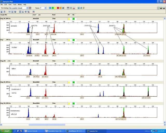 Преимплантационная генетическая диагностика (пгд, пгс) в москве