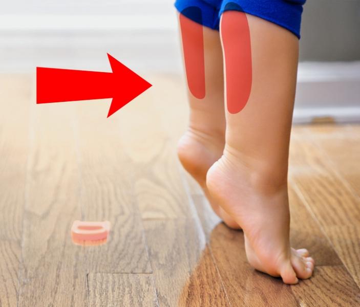 Причины ходьбы ребенка на носочках: почему стал ходить на цыпочках, как отучить