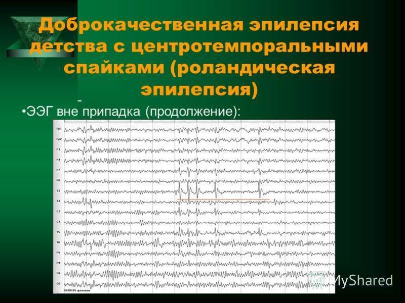 Как проявляется роландическая эпилепсия у детей: симптомы и диагностика