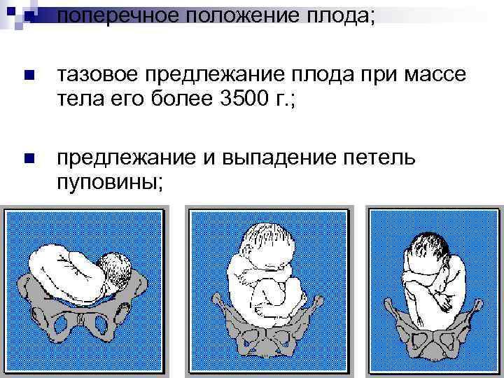 Упражнения для переворота при тазовом предлежании ребенка