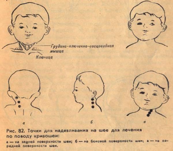Кривошея у новорожденных - признаки и фото