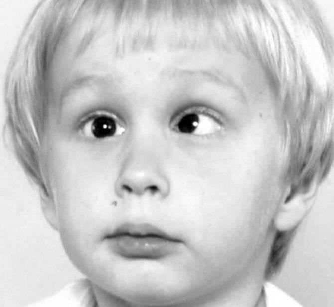 Косоглазие у детей - причины и лечение