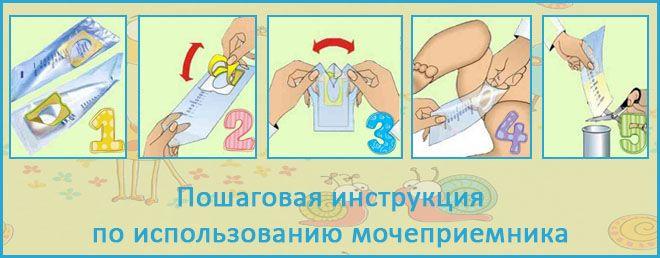3 способа- как собрать мочу у грудничка девочки или мальчика с помощью различных средств — teletype