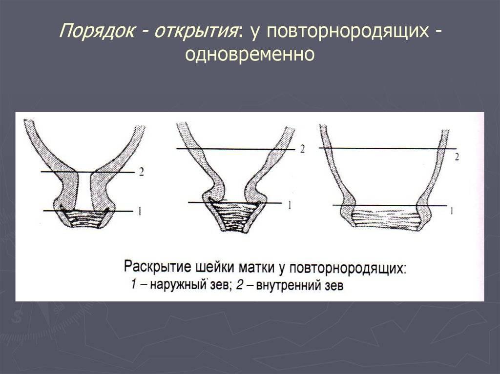 Раскрытие шейки матки на 1 палец