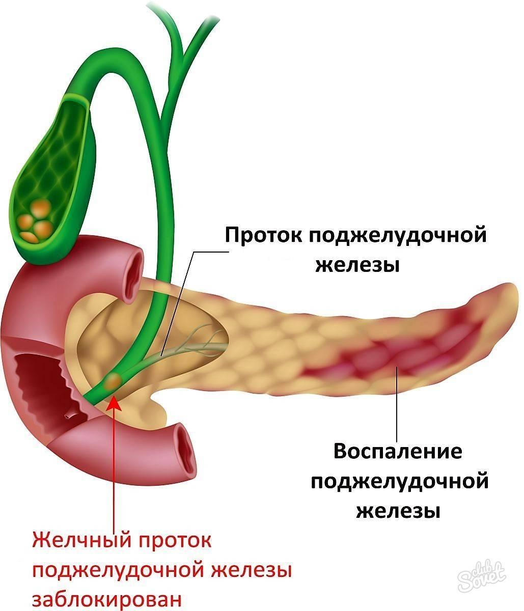 Панкреатит - симптомы, лечение, диагностика