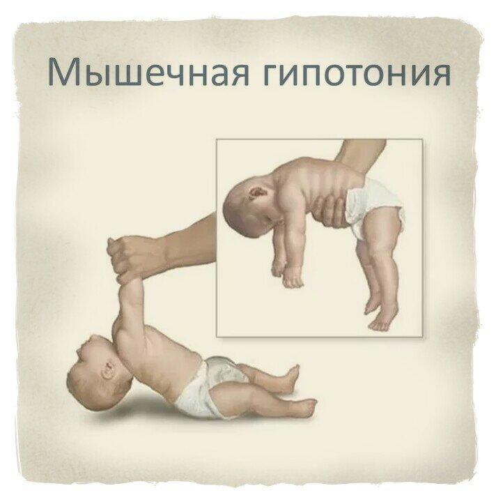 Гипертонус у младенцев: норма, патология и последствия