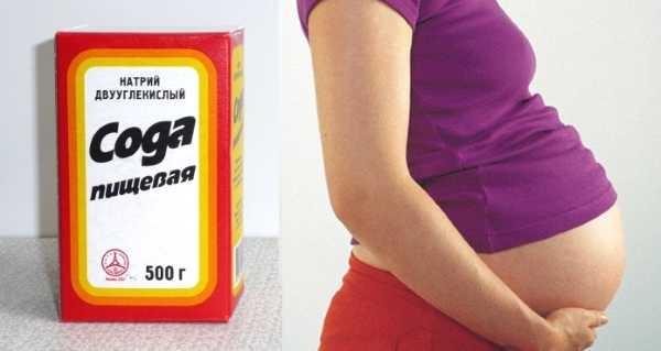 Сода от изжоги при беременности: можно ли?