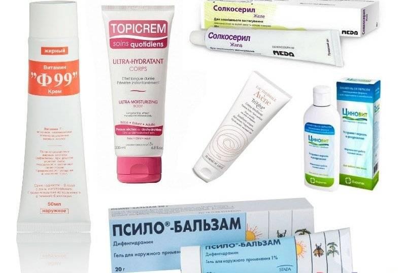 Мази и кремы при аллергическом дерматите: выбираем нужный препарат и учимся применять правильно