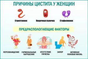 Как после родов лечить цистит